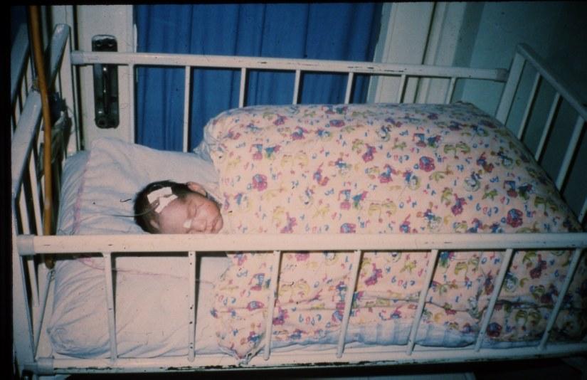 baby w scalp IV