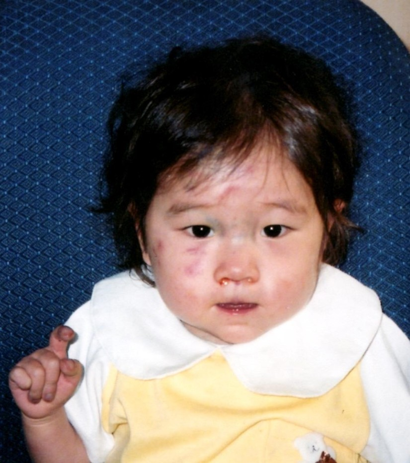 Sweet Marie- who was born with a serious heart defect. 2004