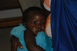 The baby girl with cerebral malaria survived!!!